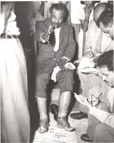 Albizu burns and lesions